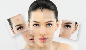 beneficios de jabón de alepo pieles grasas