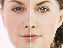 jabon de asepxia para el acne